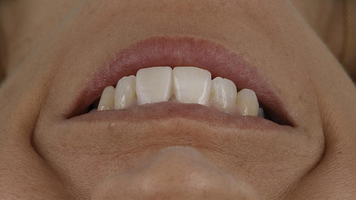 Estética Dental y Facial