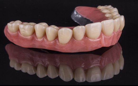 Dental prosthesis and implants